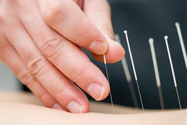 طب سنتی و طب فیزیکی